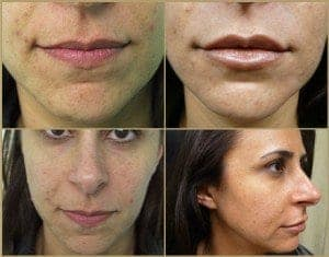 Before and after lip augmentation using hyaluronic acid dermal filler called Hydrelle by Dr U in a Hermosa Beach Patient*