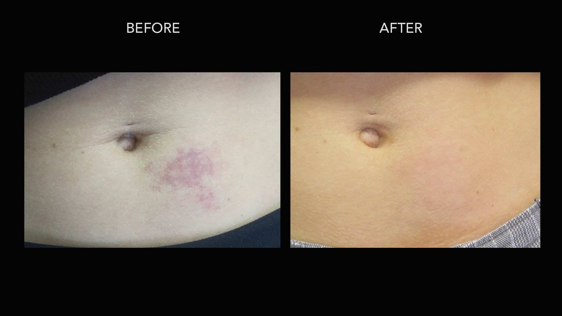 V Beam before and after photo of a birthmark treatment by Dr. Umar.*