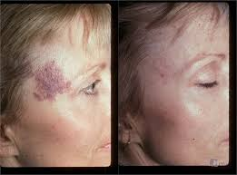 Turning to birthmark removal, this patient was able to greatly reduce the appearance of her facial birthmark.