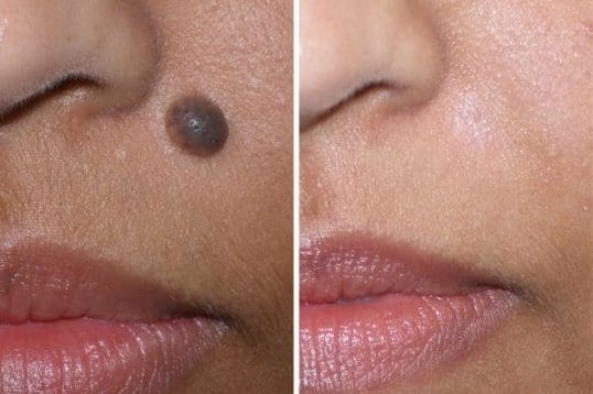 Thanks to facial mole removal treatment, this patient was able to achieve the cosmetic look she was after.