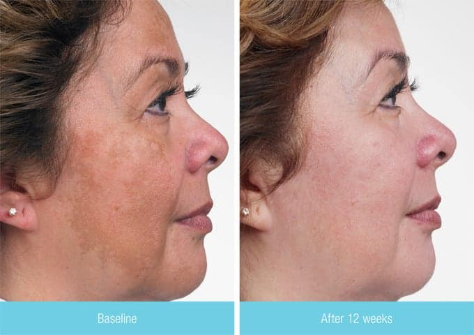 If you're wondering how to stop melasma, there are may preventative forms, however, laser therapy is the most effective one it has already appeared on the skin.