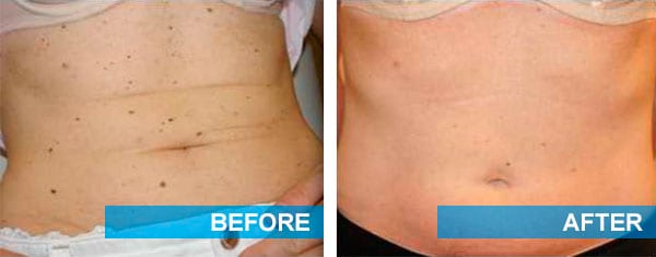 While this patient had a lot of moles covering her stomach, she was able to significantly reduce the amount thanks to skin mole treatment.