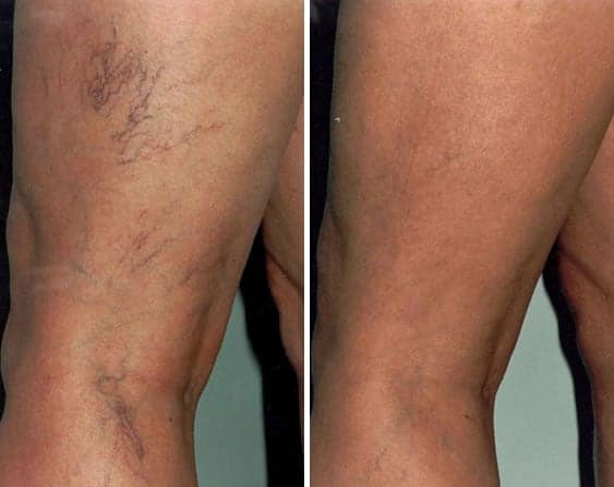 Beginning with a lot of visible veins in the thighs, this patient was able to successfully remove veins in legs.