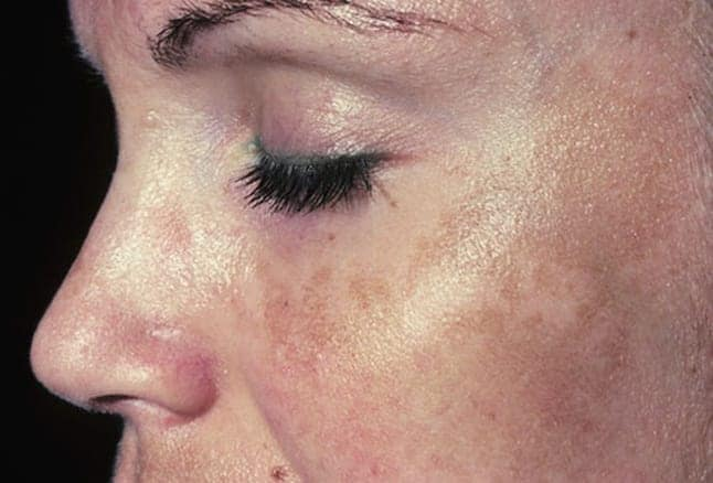 After reaching a certain point, melasma natural treatment plans are not very effective.