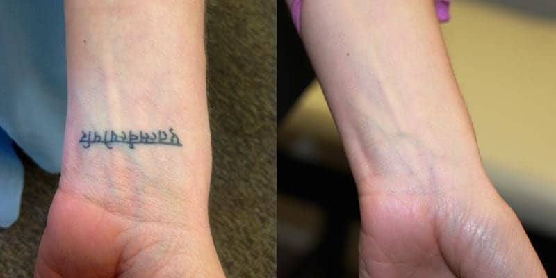 Tattoo removal by laser: laser tattoo removal before and after