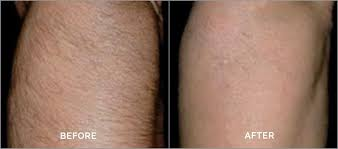 Before and after photo of a patient who received laser hair removal for his upper arm.