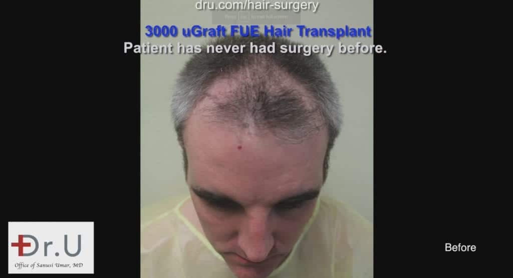 Consult with Dr. Umar on how to address thinning hair