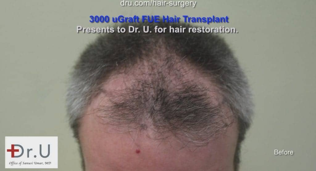 Thinning hair men: Erosion of the temple points and hairline before treatment