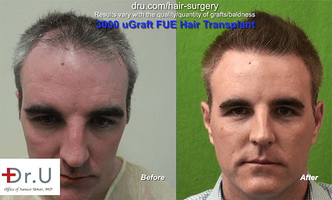 Before and After Dr.UGraft to address thinning hair men