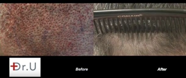 Non Linear Scar FUE Hair Transplant: FUE wounds immediately after extraction and 1 year after Dr.UGraft hair restoration surgery