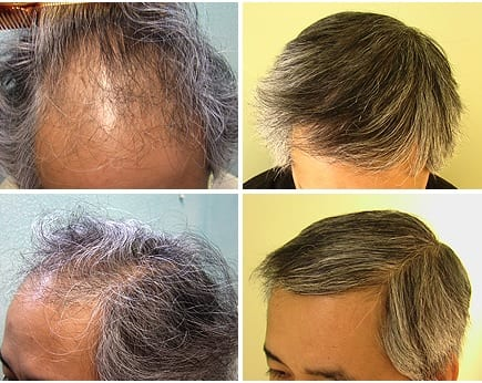 Before and after: Asian hair loss transplant with the DrUGraft procedure