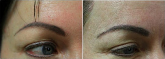 Eyebrow graft with the DrUGraft method