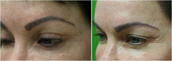 Before and after eyebrow hair transplant with Dr. Umar