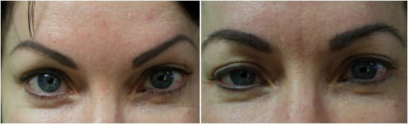 Hair transplant for eyebrows: Before and after eyebrow graft