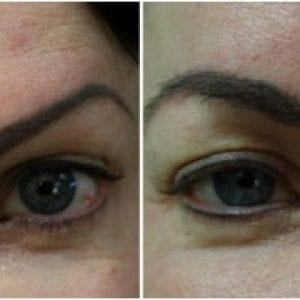 Before and after DrUGraft eyebrow restoration