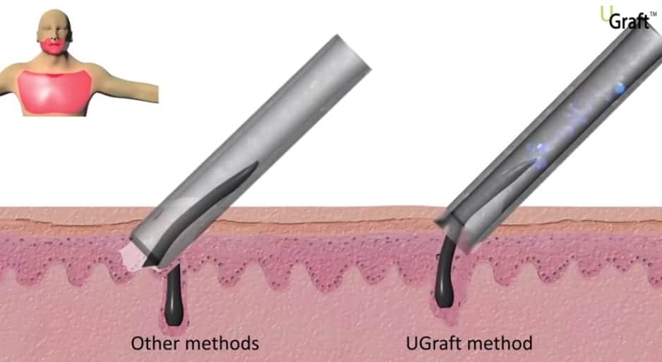 The gentle pulling action of the Dr.UGraft has few hair transplant surgery side effects