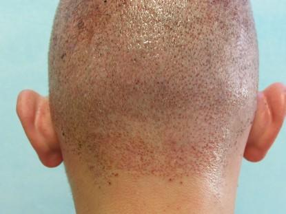Hair restoration FUE: Follicular unit extraction process has quick healing time