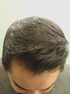 Ethnicity and Hair Loss: DrUGraft FUE Transplant using nape hair by Dr U Repaired this East Asian patients previously harsh looking FUSS hairline