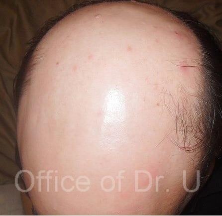 Patient scalp prior to Dr U FUE body hair transplantation