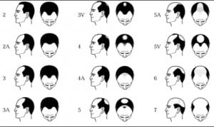 Norwood scale and solutions by hair loss hair transplant using Dr.UGraft.