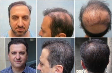 Before and after results of hair restoration using the DrUGraft