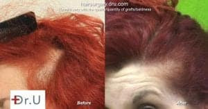 Female hair restoration before and after: Traction alopecia can be treated with hair transplant for women.