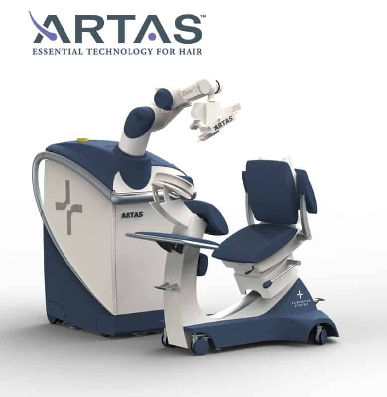 ARTAS automated FUE hair transplant method