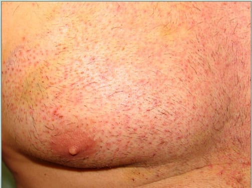 Chest donor area after body hair transplant