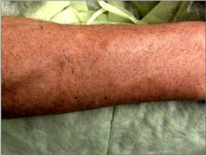 3 weeks after surgery, this patient's donor area had healed well