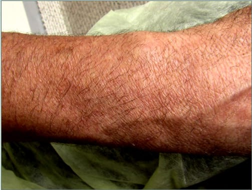 Hyperpigmentation generally subsides after surgery