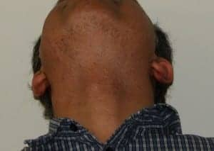 FUE hair transplant recovery time: patient after BHT healing