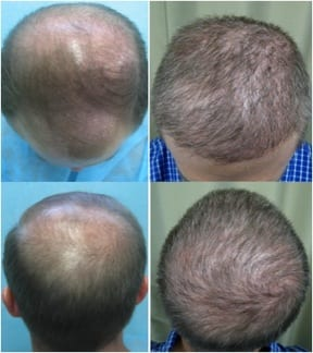 Before and after body hair transplant