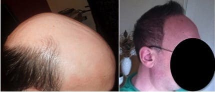 Before and After body hair to head transplant with the Dr.UGraft