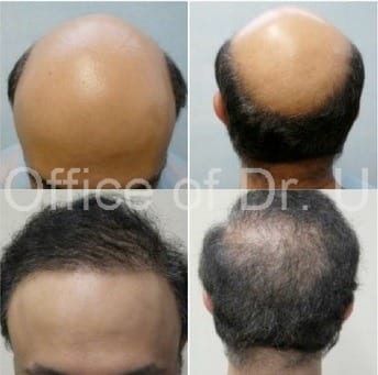 8,000 BHT restores full head of hair using Advanced FUE hair restoration.