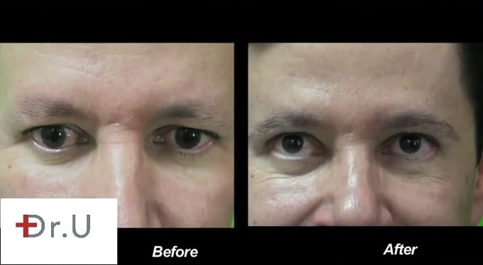 Body hair transplant results: Eyebrow restoration in a male patient