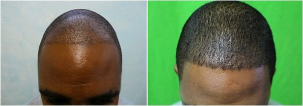 After failing basic FUE in another clinic, this African haired patient found solution with Dr.UGraft FUE by Dr U