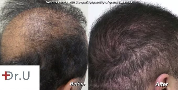 The crown and sides of the hair repaired by Dr. Umar with the Dr.UGraft