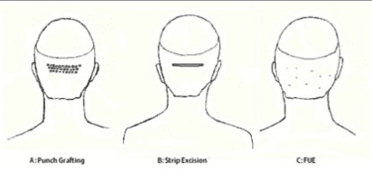 Different hair transplant processes and their incision patterns including FUE hair restoration
