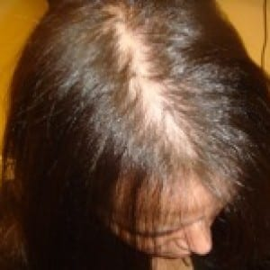 Patient with Female Hair Loss Information From Androgenic Alopecia