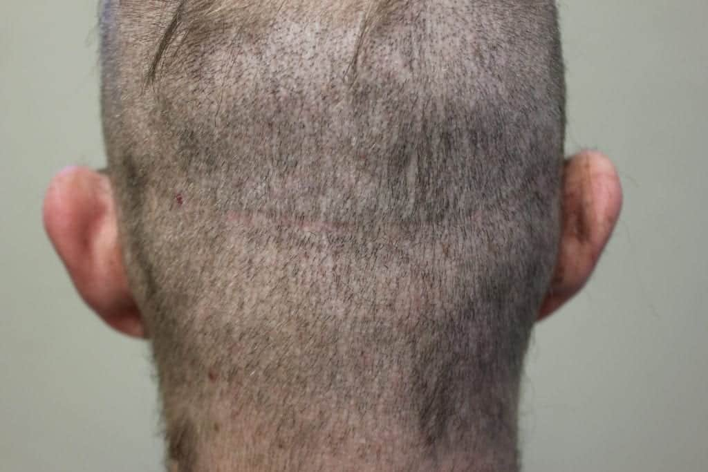 fue white dot scarring in a shaved head vs strip scar in the shaved head of a patient