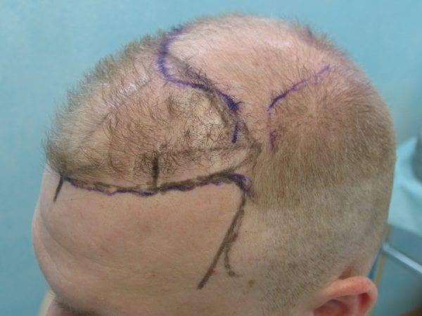 Dr. Umar designs a hair treatment plan unique to every patient