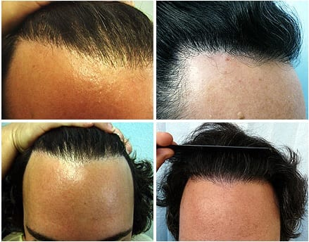 Transplant body hair to head: Elimination of pluggy look with the DrUGraft method