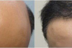 The body hair transplant ability of Dr.UGraft allows for hair restoration in cases of extreme baldness