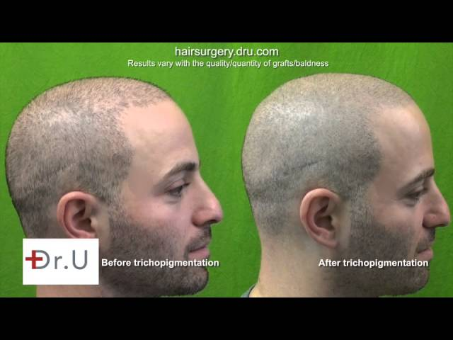Temporary hair loss solution, scalp tattooing, scalp tattoo for hair loss, scalp micro pigmentation, SMP