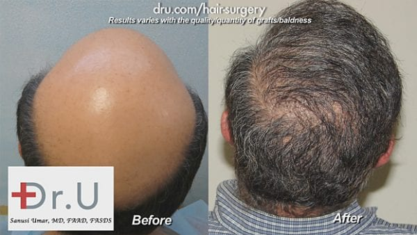 Included in the BHT study published by the Aesthetic surgery Journal is this NW 7 severely bald patient who was restored to normalcy using UGraft BHT*