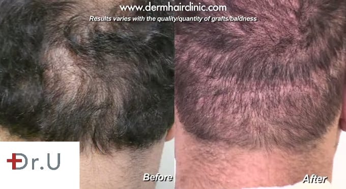Scar repair using body hair transplant with the Dr.UGraft.