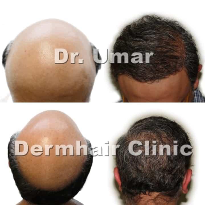 Severe hair loss hair transplant using DrUGraft