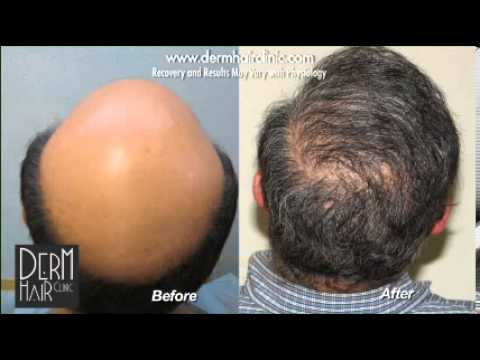 Cost of hair restoration may influenced by many factors such as the severity of hair loss. High graft count Patient with severe baldness before and after 12500 graft Dr UGraft advanced FUE restoration