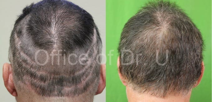 Before and after Dr.UGraft treatment for scars from previous surgeries