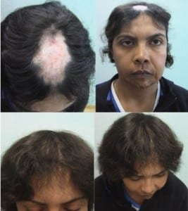 Female hair transplant photos: Before and After female hair replacement